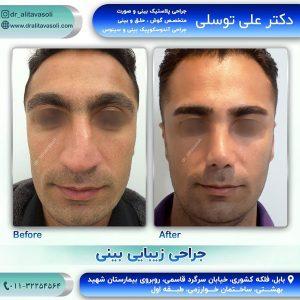 جراح بینی بابل