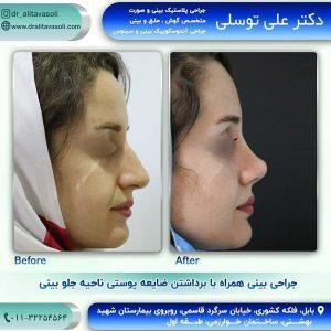 جراحی بینی در بابل