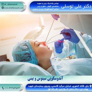 جراحی آندوسکوپی سینوس و بینی