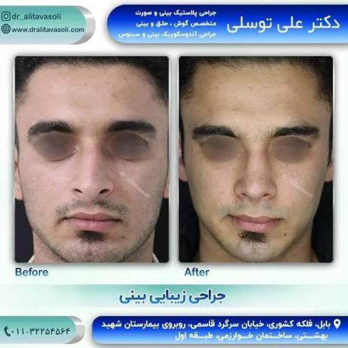 جراحی بینی 150 (35)