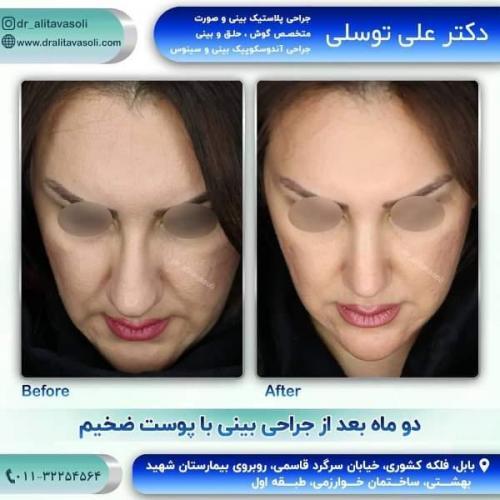 جراحی بینی 150 (40)