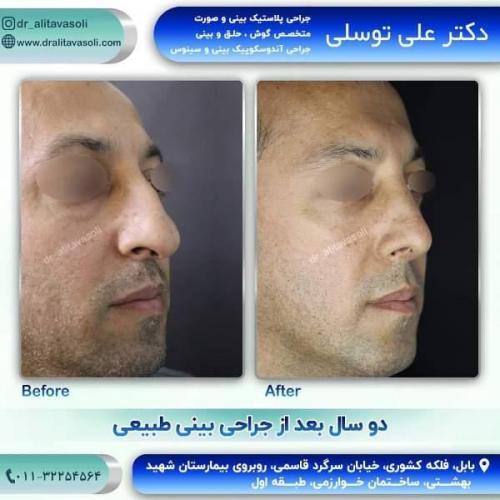 جراحی بینی 150 (48)