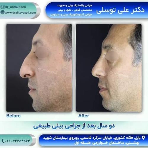 جراحی بینی 150 (50)