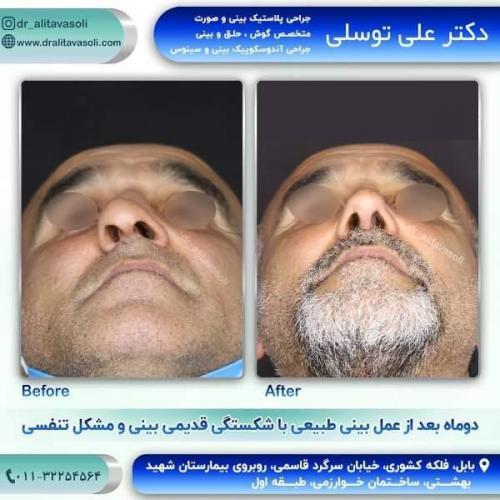 جراحی بینی 150 (51)
