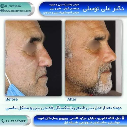 جراحی بینی 150 (52)