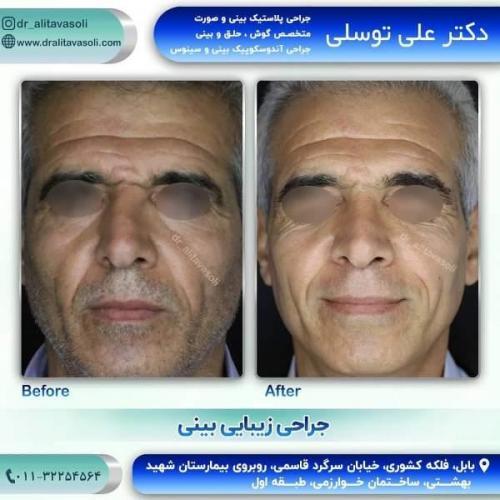 جراحی بینی 150 (53)