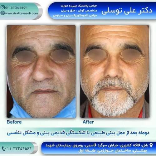 جراحی بینی 150 (55)