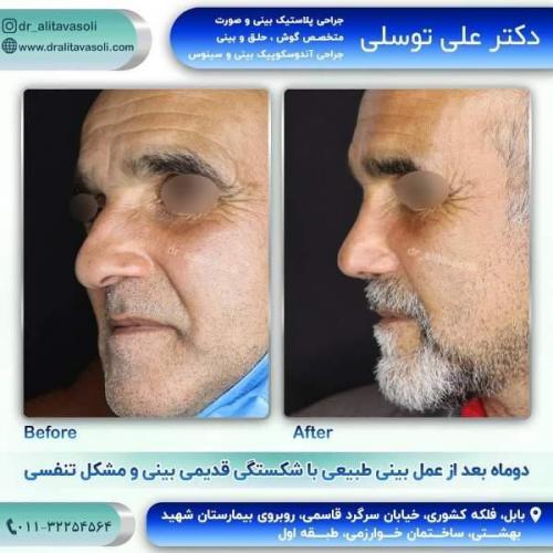 جراحی بینی 150 (56)
