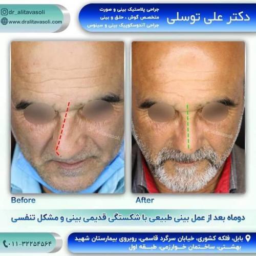 جراحی بینی 150 (57)