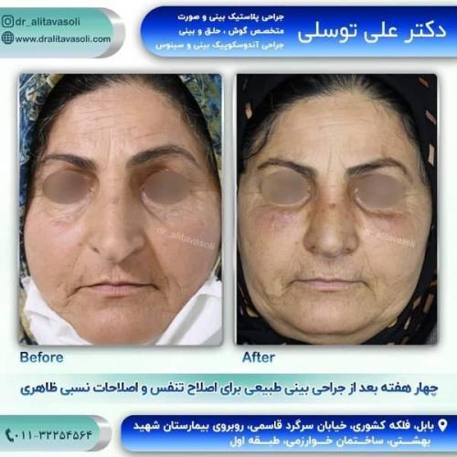 جراحی بینی 150 (58)