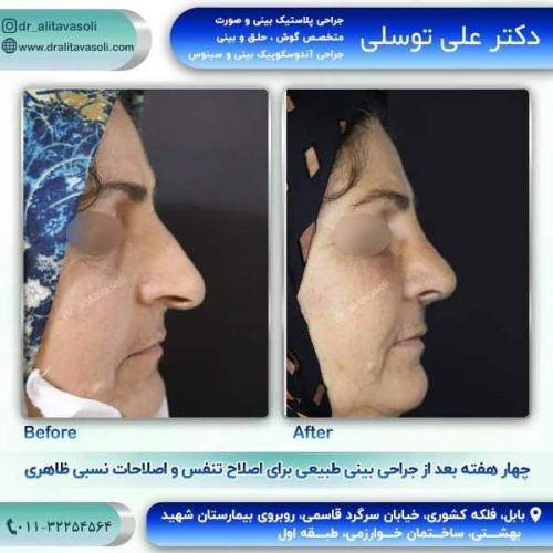 جراحی بینی 150 (60)