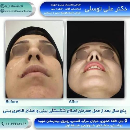 جراحی بینی 150 (62)