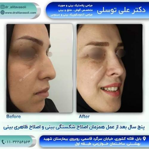 جراحی بینی 150 (63)