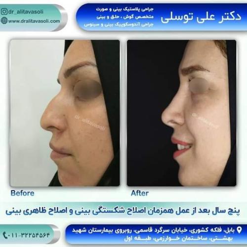 جراحی بینی 150 (64)